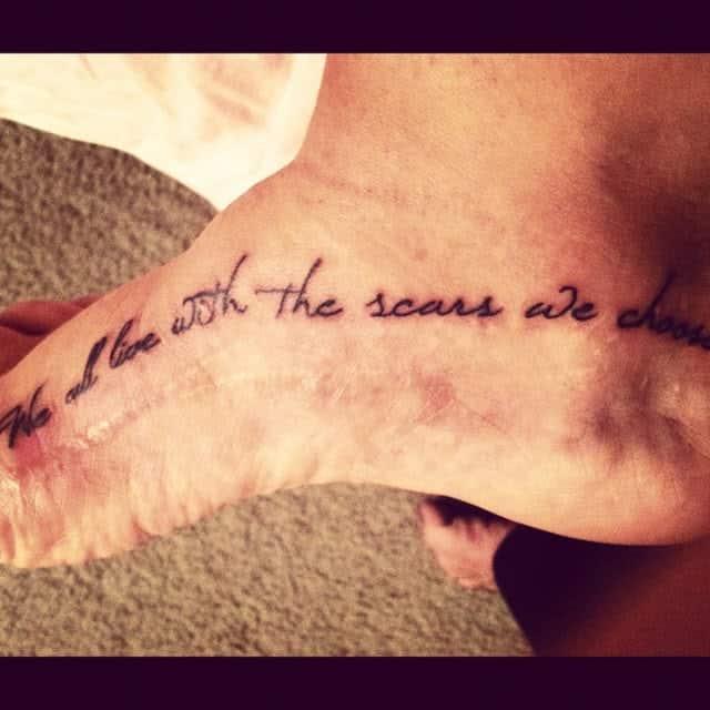 13 Mais Criativas Tatuagens Para Cobrir Cicatrizes