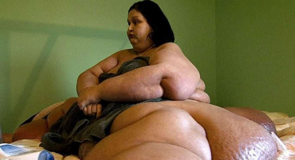 Mulher mais gorda do mundo perde 395 quilos