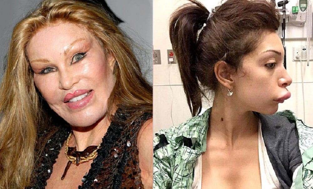11 cirurgias plásticas das famosas que deram muito errado