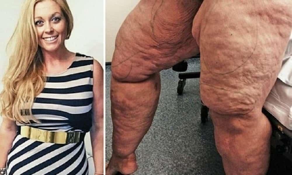 Ela retirou 12 litros de gordura das pernas e ficou irreconhecível