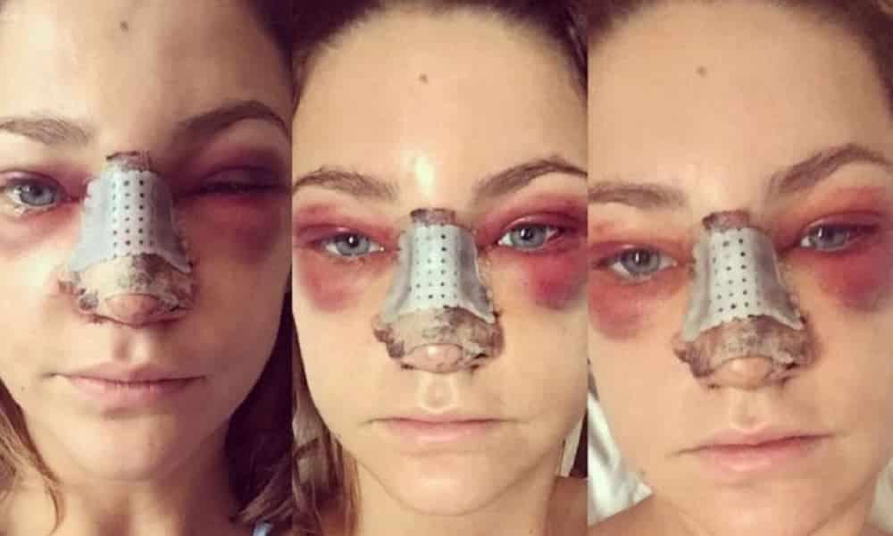Fotos chocantes mostram como fica uma cirurgia no nariz