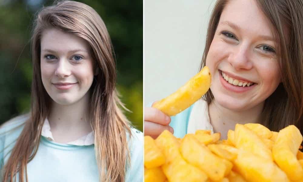 Por uma doença ela comeu só batata frita durante 15 anos