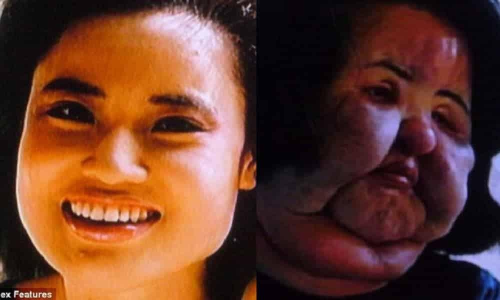 Ela injetou óleo de cozinha no rosto e o resultado foi monstruoso