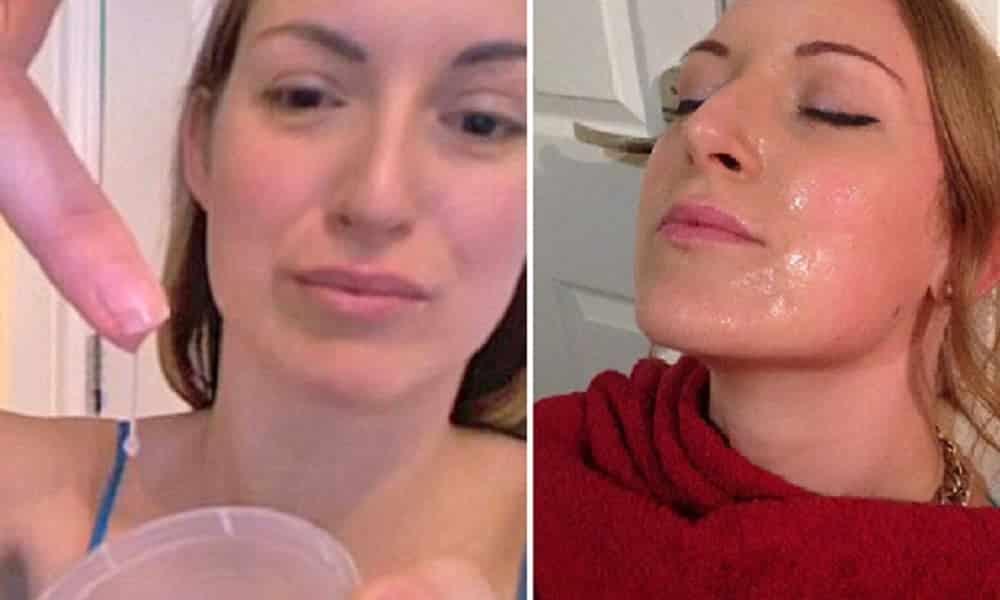 Sabe o que ela usa contra a acne? Sêmen humano