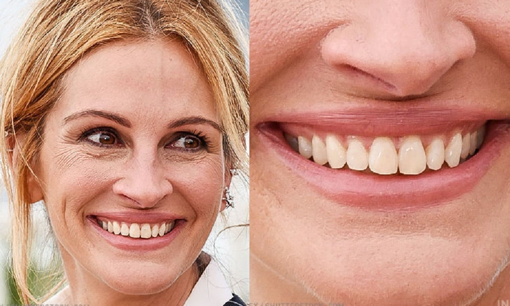 Você reconhece o sorriso dos famosos? Faça o teste