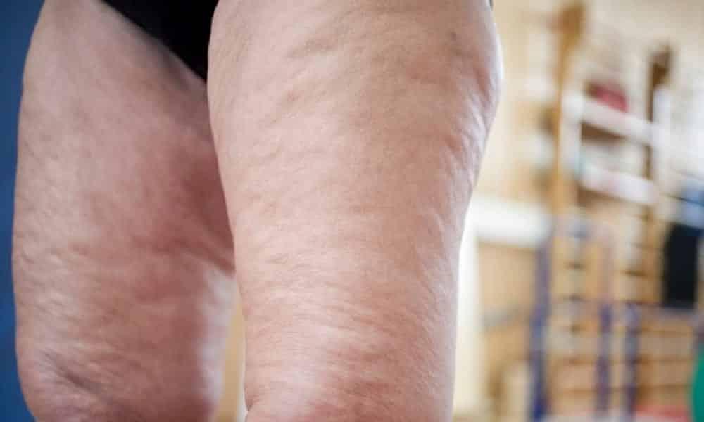 O que realmente causa celulite? E por que homens não têm?