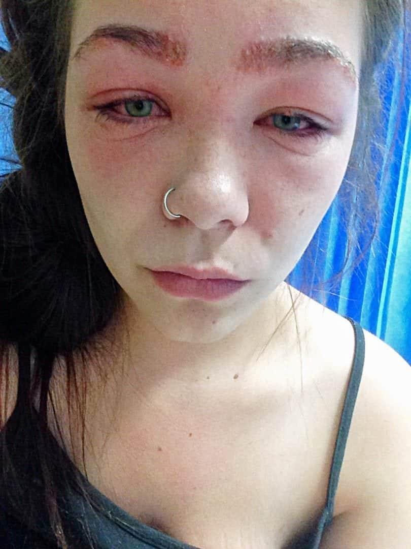 Adolescente Quase Fica Cega Depois De Tingir As