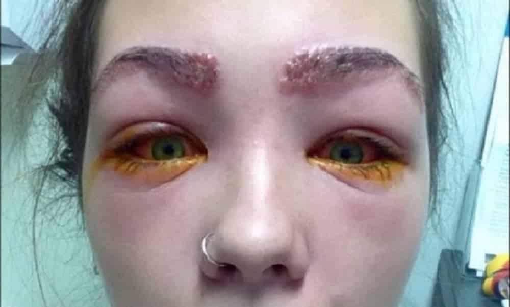 Adolescente quase fica cega depois de tingir as sobrancelhas em casa