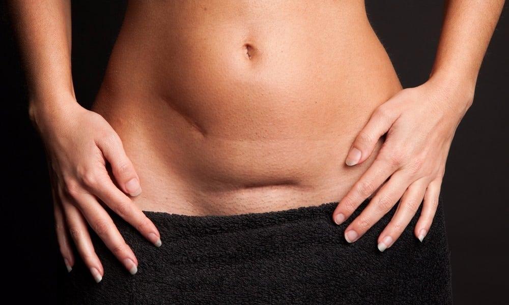 5 verdades sobre a cesárea que toda mulher deveria saber