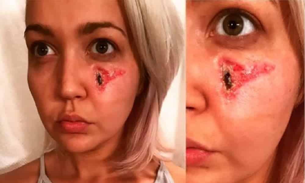 A forma que ela conseguiu essa cicatriz no rosto vai fazer você perder o sono!