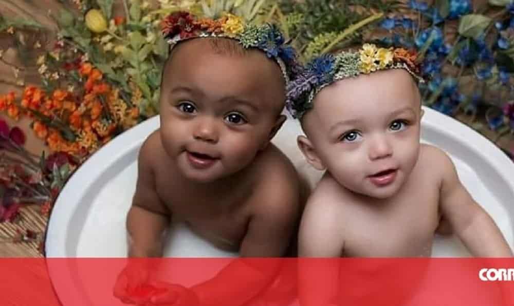 Gêmeas nascem com cor da pele diferente e o motivo é surpreendente