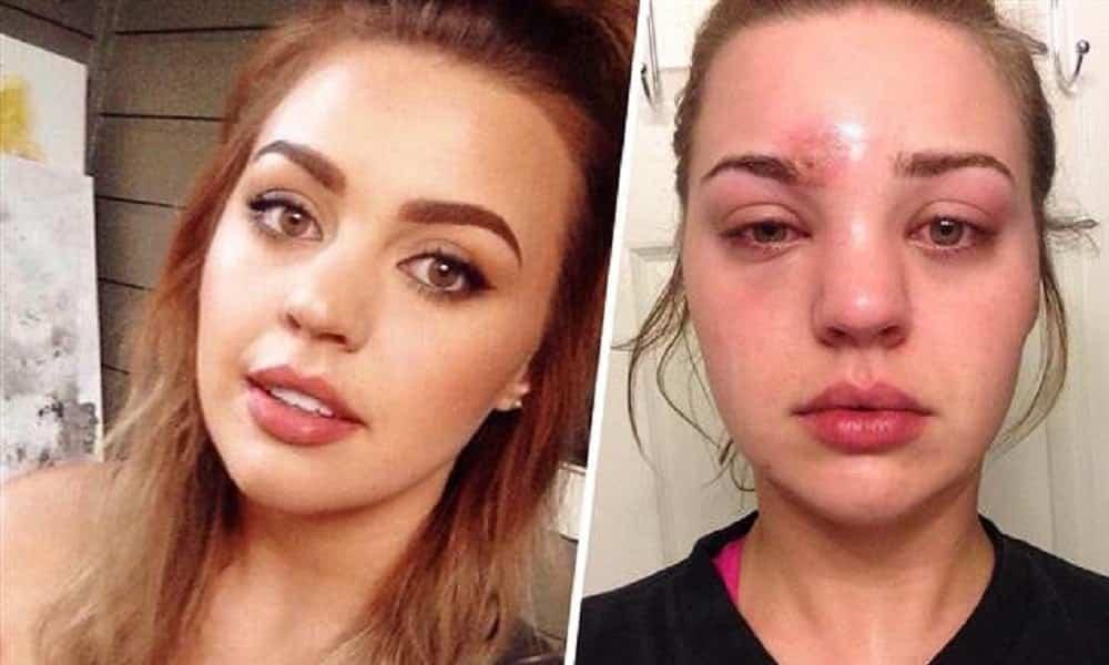Mulher aperta espinha e descobre que tem infecção muito mais grave no rosto