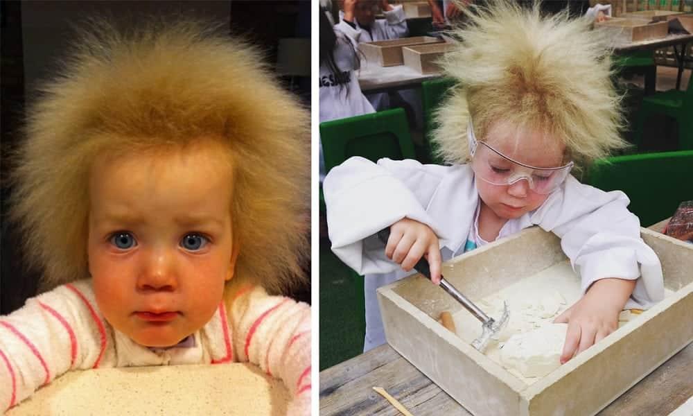 Menina australiana sofre com síndrome do cabelo impenteável e fotos surpreendem