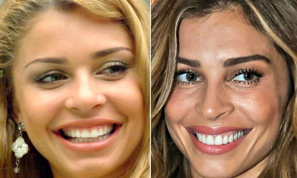 10 antes e depois do sorriso das famosas