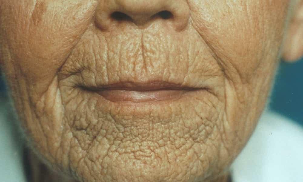Alimentos que prejudicam a pele: você come hoje e terá rugas em 20 anos