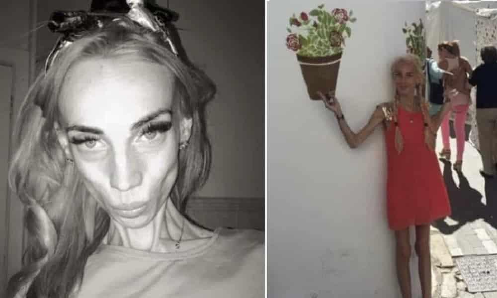 Ela chegou a pesar 25 kg, mas venceu a guerra contra a anorexia
