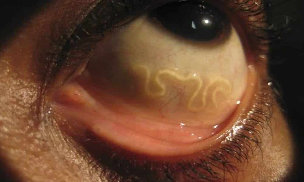Médico descobre 14 vermes no olho de americana