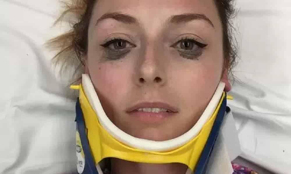 Mulher descobre o melhor delineador do mundo após acidente de carro