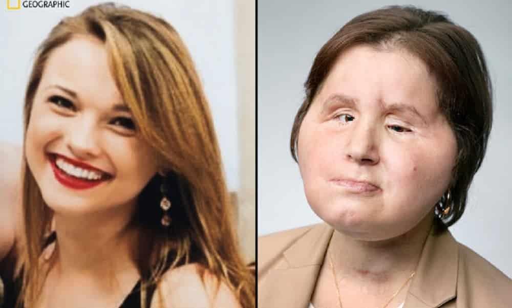 Aos 22, americana é a mulher mais jovem a fazer um transplante de rosto