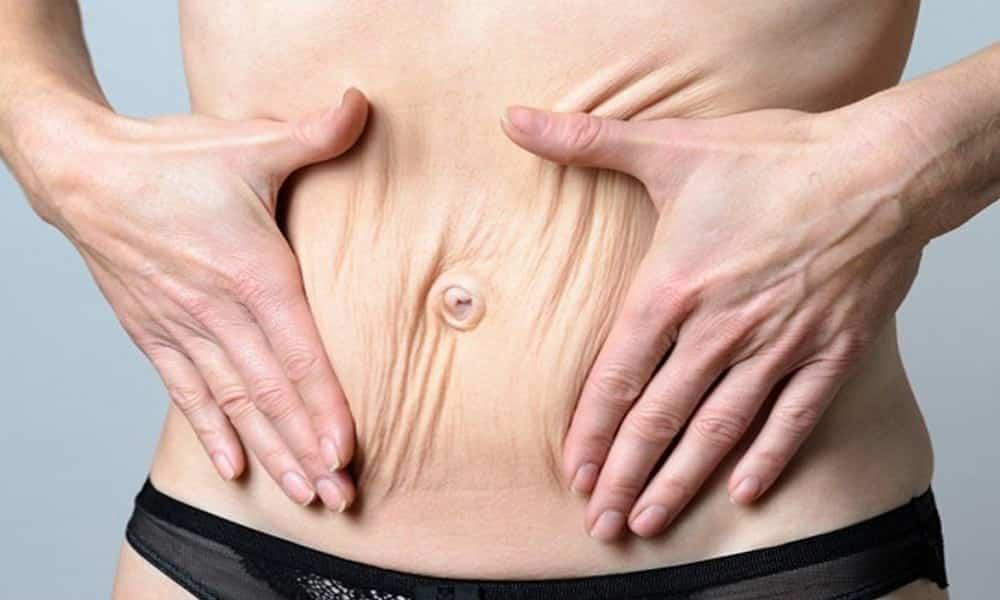8 formas simples de acabar com a flacidez em todo corpo