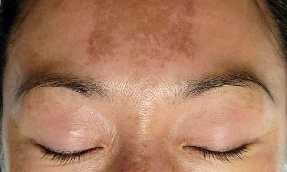 7 tipos de manchas na pele e como tratá-las