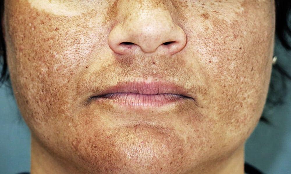 melasma causas sintomas e tratamento