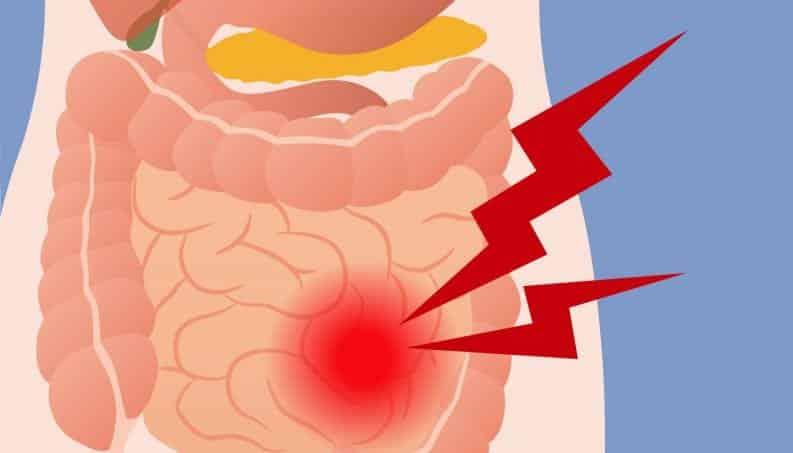 10 causas pouco conhecidas para prisão de ventre