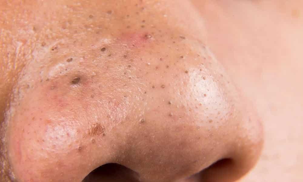 4 formas de remover cravos da pele que realmente funcionam