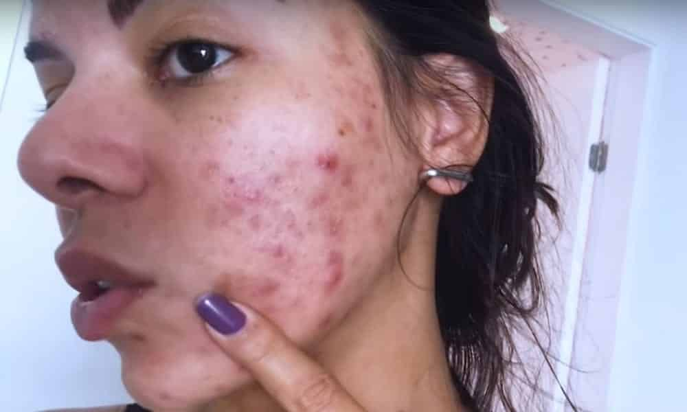 5 truques para eliminar marcas de espinha da pele