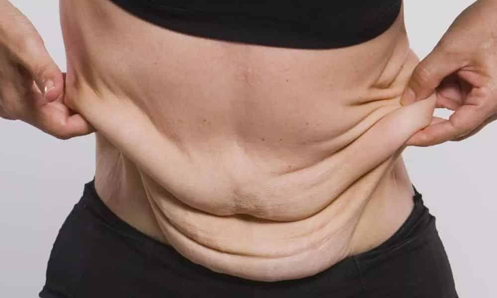 7 dicas valiosas para acabar com a flacidez do seu corpo