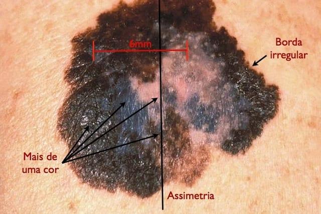 Como, através de alguns sinais, identificar câncer de pele