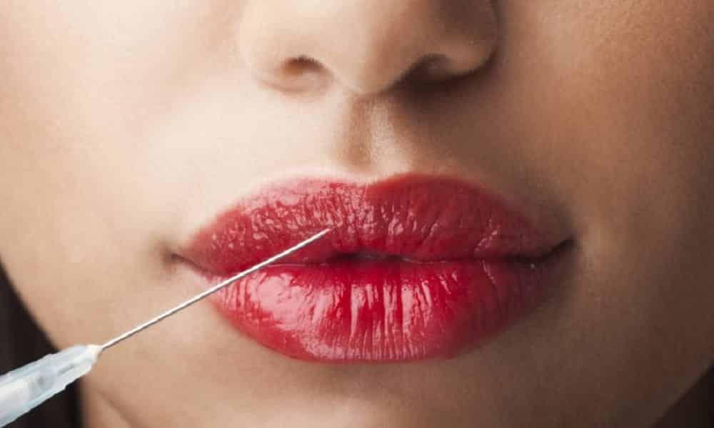 Botox: o que é e para que serve a toxina botulínica
