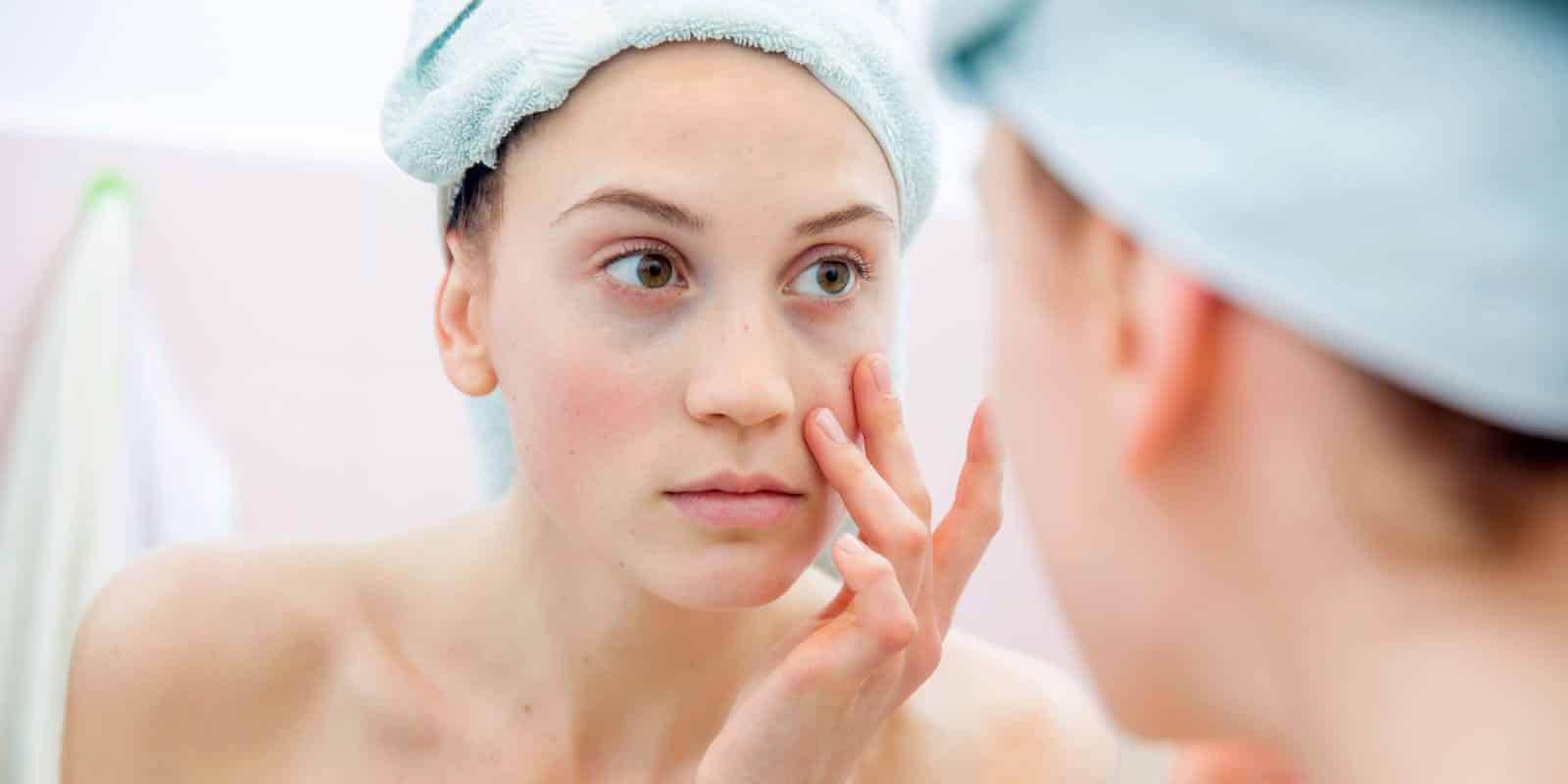 Alimentos que fazem bem para a pele e que você deveria incluir no menu