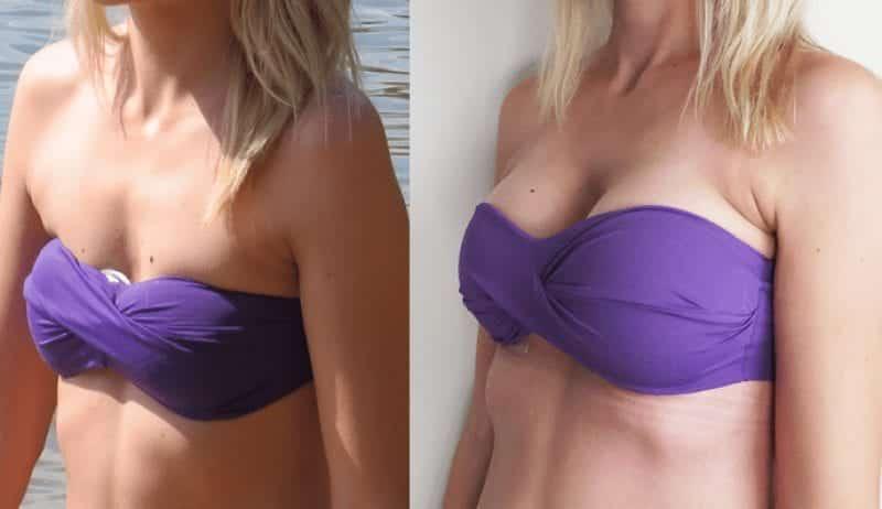 Essas são as cirurgias que as mulheres mais fazem no Brasil