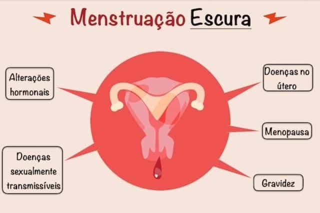 Menstruação marrom? Veja porque isso acontece.
