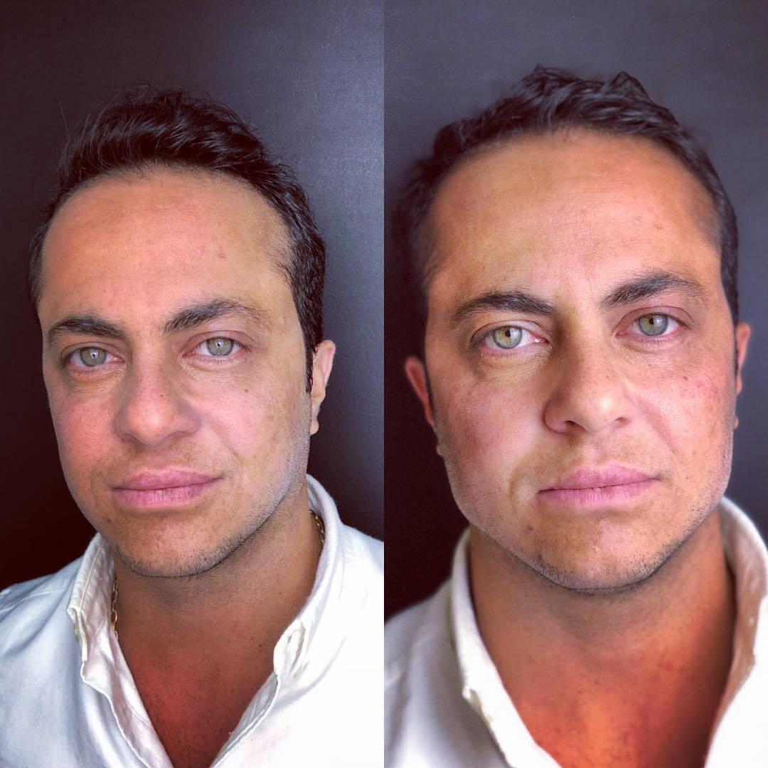 O que é e como é feita a harmonização facial [estética]
