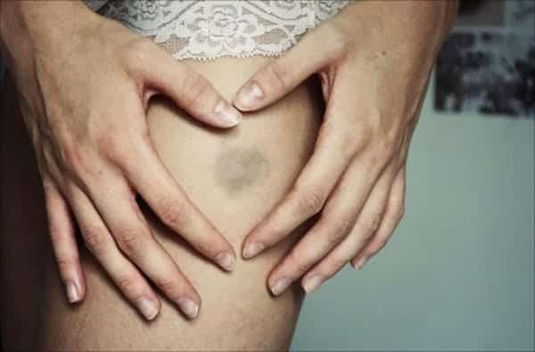 Vive com hematoma roxo pelo corpo? Isso pode ser sinal de doença