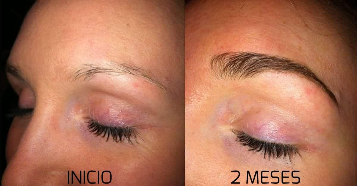 Minoxidil para sobrancelha crescer, como usar e o antes e depois