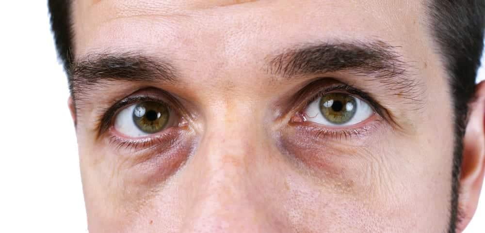 Olheiras escuras, quais as causas e tratamentos do problema