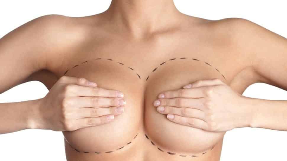 10 dicas para vocês mulheres antes de colocar silicone