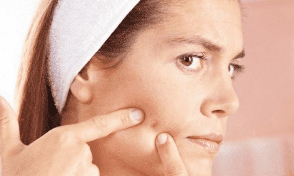 Como tirar espinhas e cravos do rosto com 3 dicas de ouro