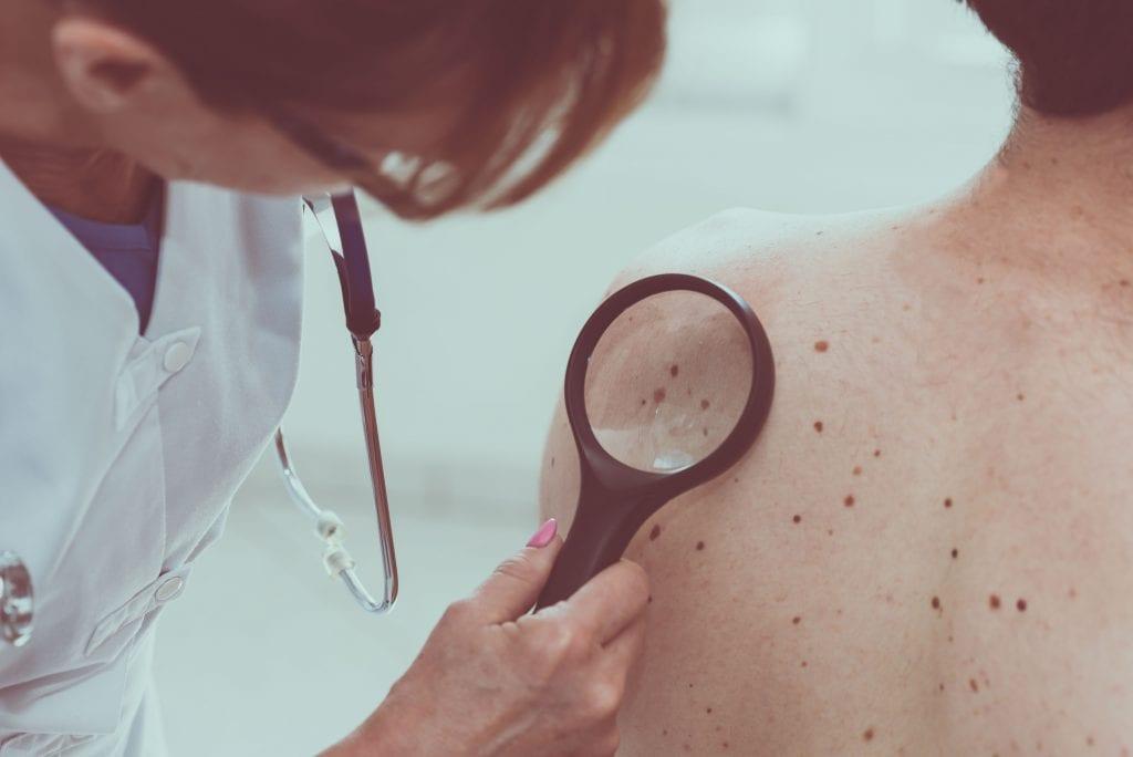 Câncer de pele – Tipos, prevenção, sinais e quando procurar um médico