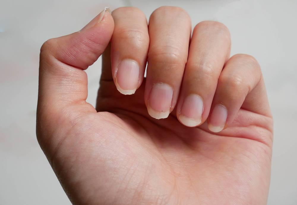 Quais são as causas e possíveis tratamentos de unhas descamando