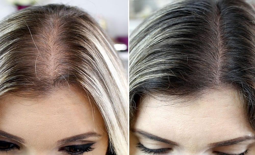 Queda de cabelo – quais são as causas, como evitar e como tratar