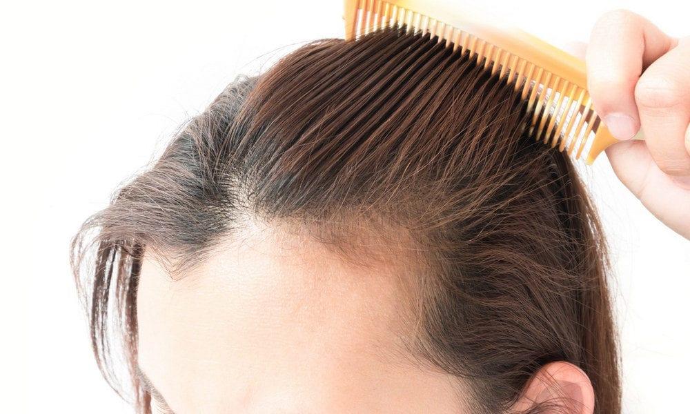 Queda de cabelo - quais são as causas, como evitar e como tratar