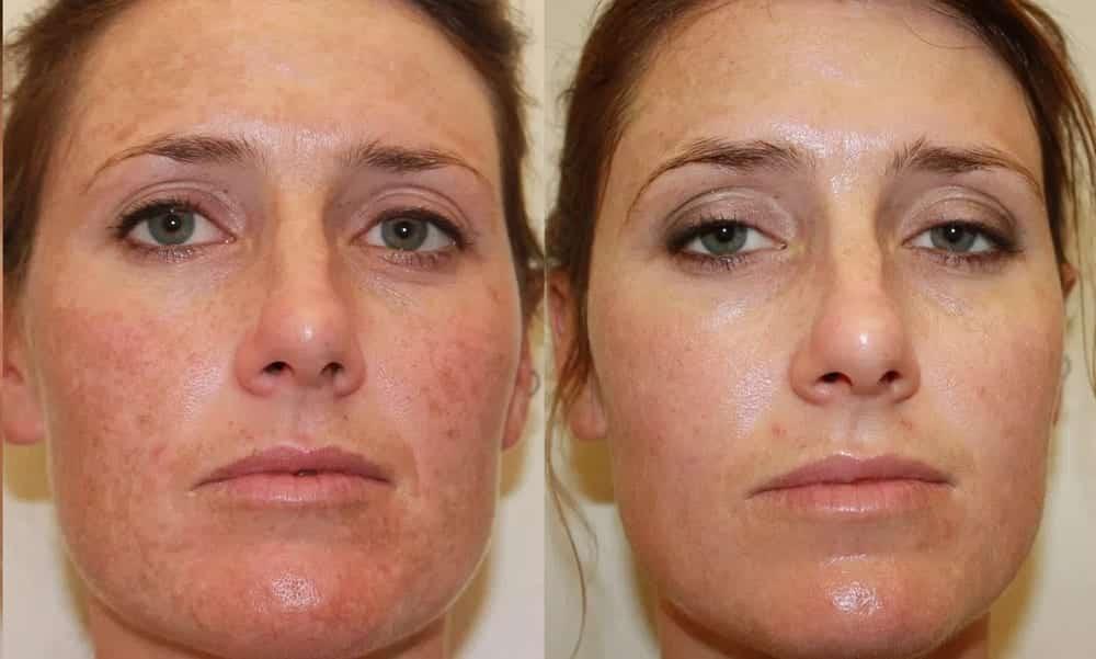 Clarear a pele - técnicas profissionais e caseiras e truques para mantê-las