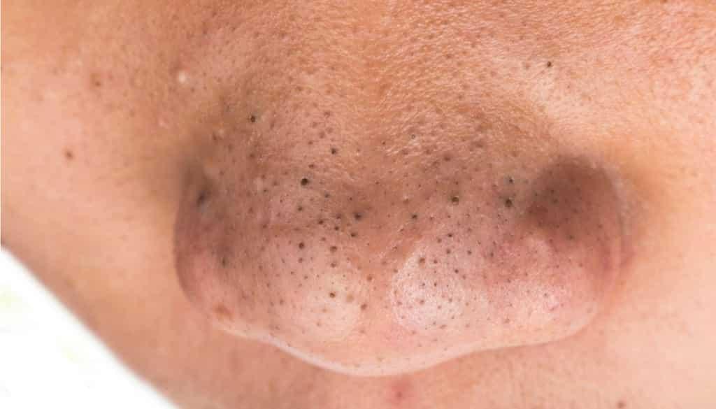 Cravo de nariz - causas, tipo e 5 formas de eliminar o problema