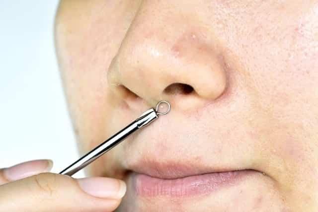 Cravo no nariz - causas, tipo e 5 formas de eliminar o problema