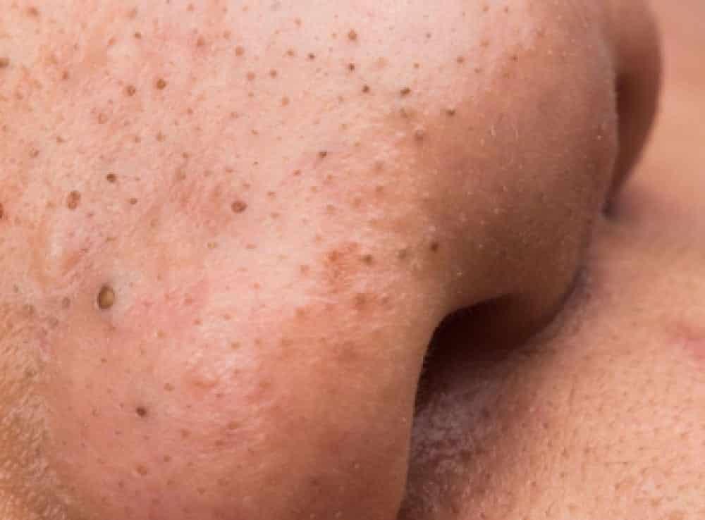 Cravo no nariz - causas, tipos, mitos e 5 formas de eliminar o problema