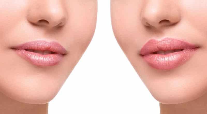 O que é o preenchimento labial, quanto custa, contraindicações